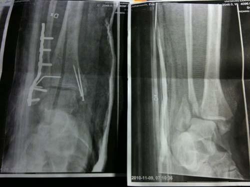 benröntgen